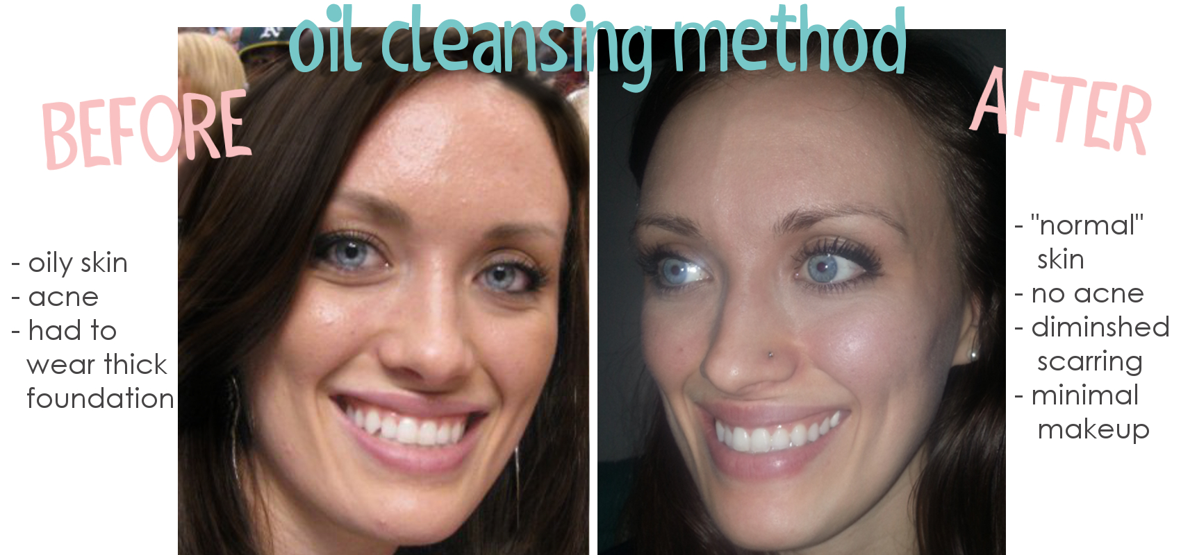 oil cleansing metoden