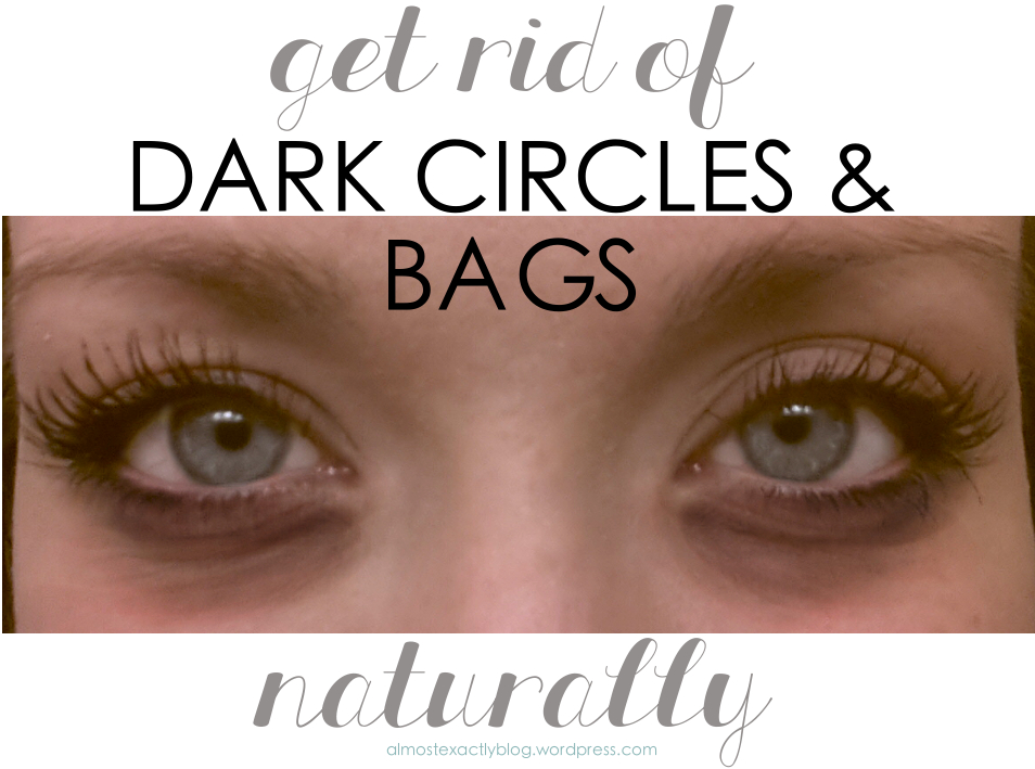 How To Minimize Eye Bags Naturally